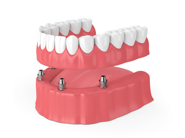 Dentures in Charlotte NC