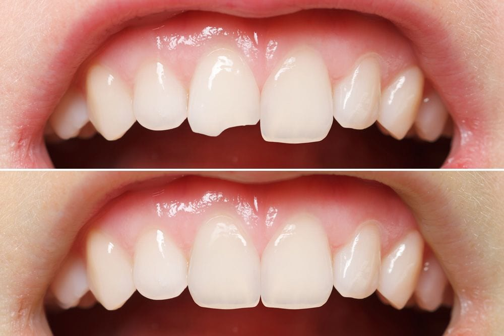 Tooth bonding for gaps between teeth and tooth chips