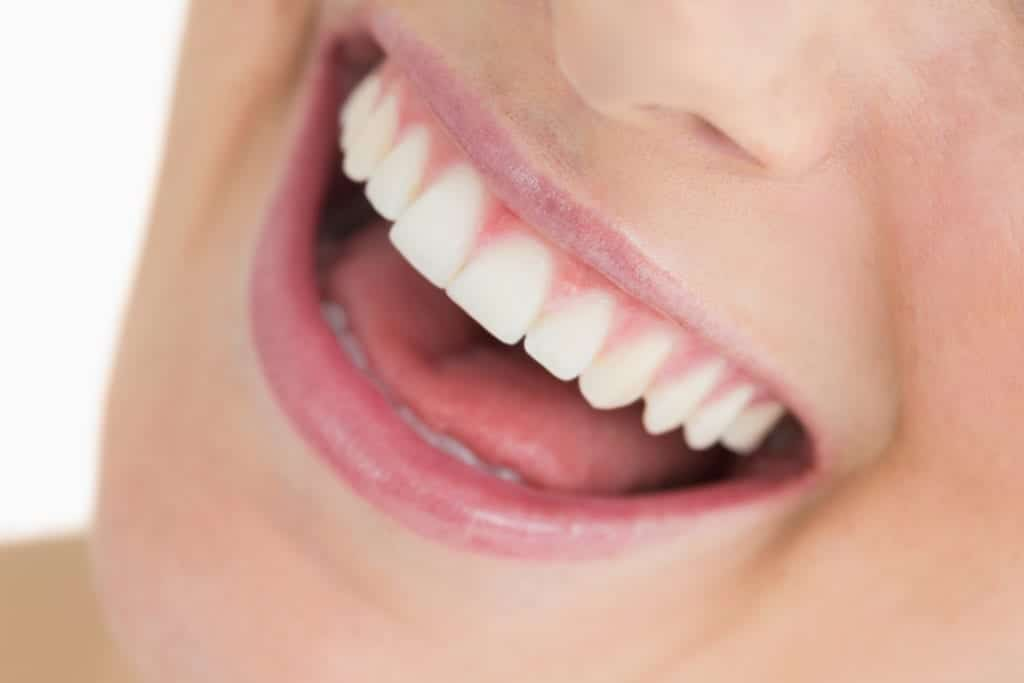 Teeth Whitening in Burlington NC