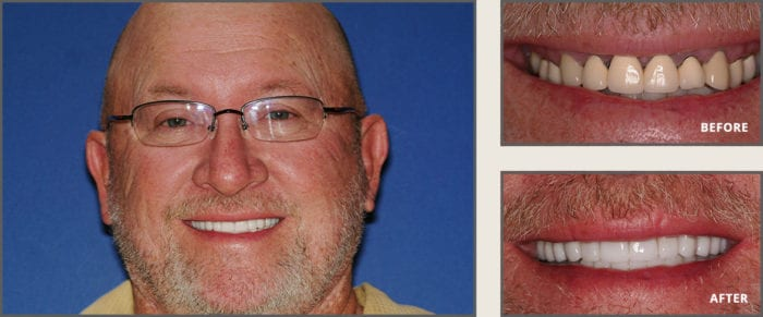 Full Mouth Reconstruction by Dallas dentist Dr. Sowell