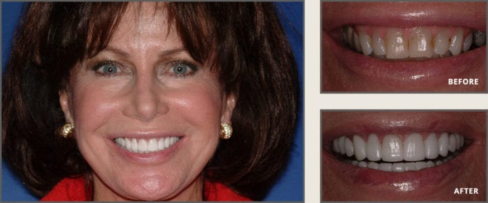 Cosmetic Dentistry Before and After Photos by dentist in Plano TX