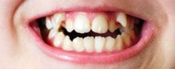 Rotated or Crooked Teeth Treatment in Plano, TX