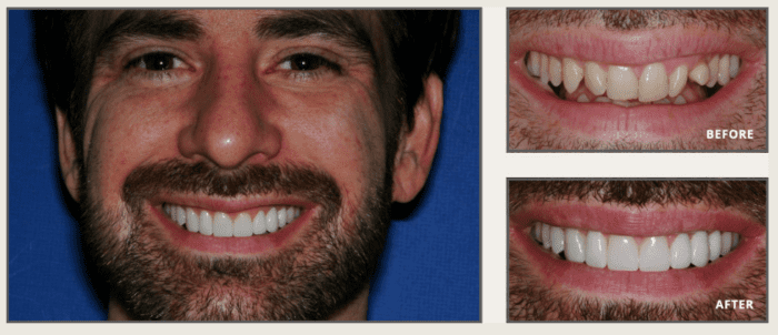 Instant Orthodontics Before & After