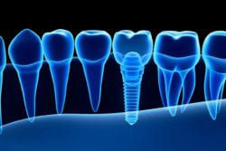 How Do I Know I Need Dental Implants?