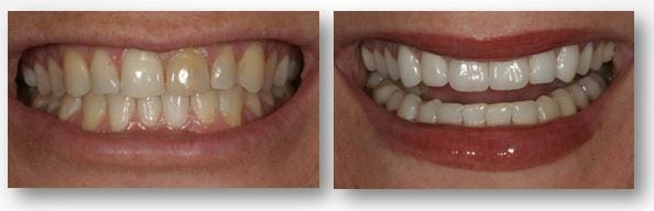 before and after dental crowns treatment in Philadelphia