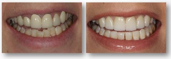 Invisalign and dental crowns before and after