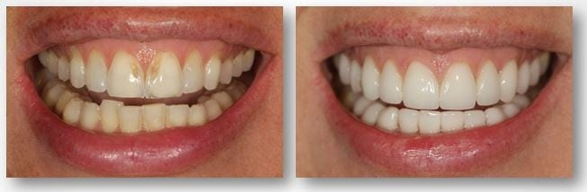 Before and after tooth enamel erosion treatment