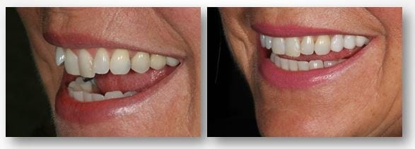Jean before and after Invisalign