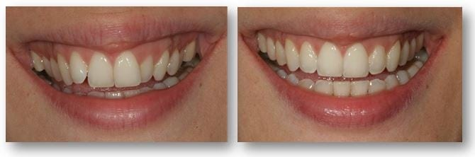 Amaya before and after Invisalign treatment in Philadelphia
