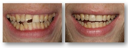 Dental bonding for chipped teeth before and after