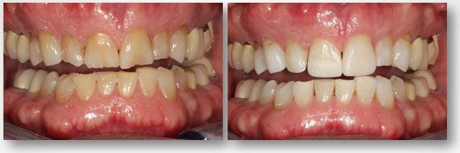 interim dental bonding before and after
