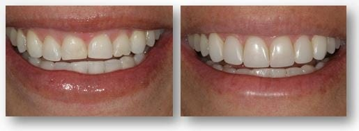 Dental bonding for worn teeth before and after