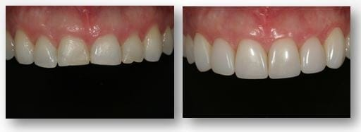 Maria results after tooth bonding in Philadelphia PA
