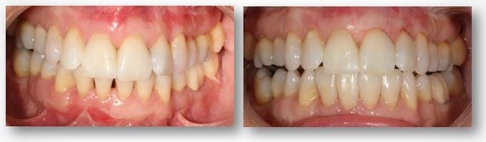 Sandy J before and after dental bonding