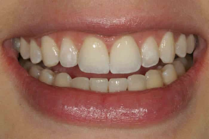 After tooth bonding for chipped tooth