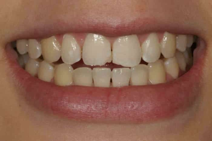 Before tooth bonding for chipped tooth